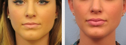 Fort Myers Lip Enhancement | Naples Lip Augmentation